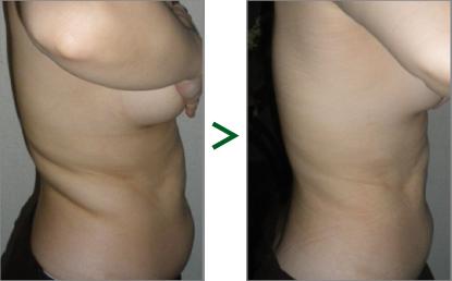 腰〜お腹が1回でこの通り!たるみが改善、お肌も明るくなりました!